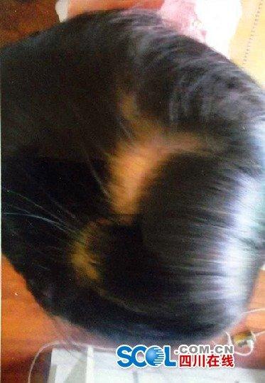 """3岁女童幼儿园内7天2次受伤 头发被扯掉 孩子被老师恐吓""""不能告"""